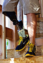 man walking down stairs with prosthetic leg