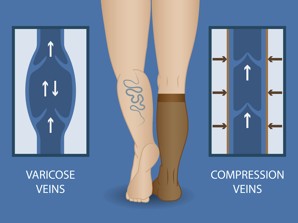 Medical compression socks for the treatment of varicose veins. Medical hosiery.